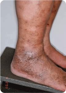 Advanced-Venous Spider and Varicose Vein Treatment Melbourne 01