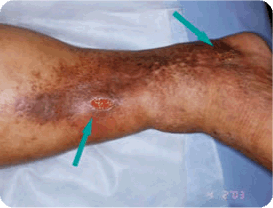 Advanced-Venous Spider and Varicose Vein Treatment Melbourne 03