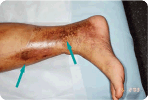 Advanced-Venous Spider and Varicose Vein Treatment 06