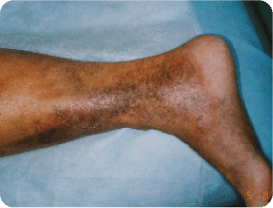 Advanced-Venous Spider and Varicose Vein Treatment
