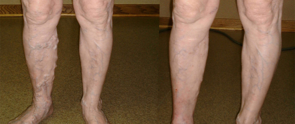Before and after image of a patient's legs treated with Endovenous laser treatment
