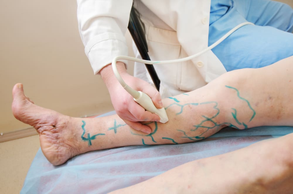 doctor treating the woman's leg with marking for Ultrasound guided sclerotherapy
