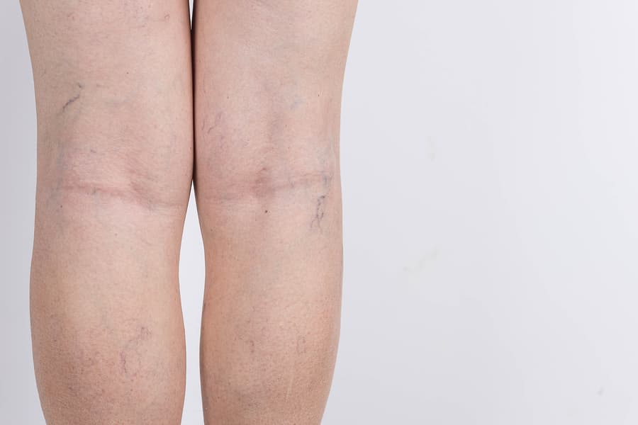 aricose veins on a legs of woman