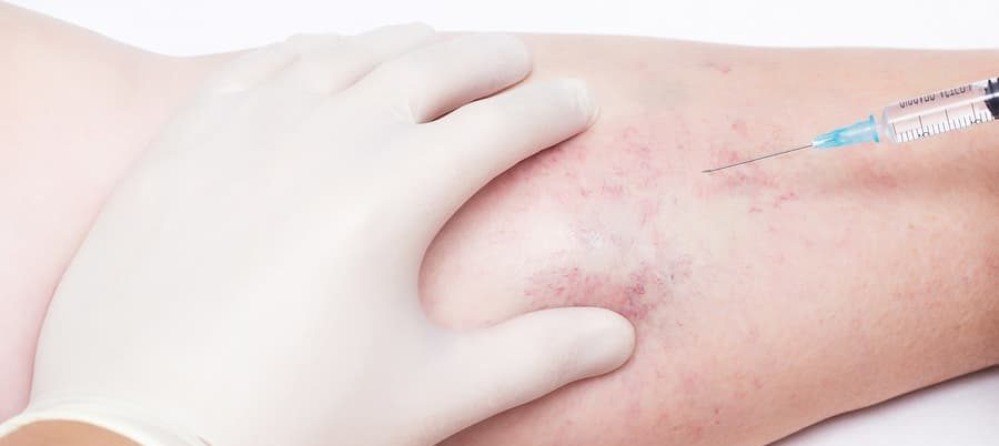 Close up image of doctor injecting to varicose veins on women's leg