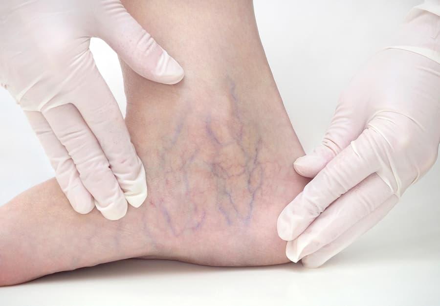 Doctor checking spider veins on women's leg