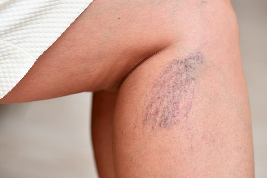 Varicose veins on female legs in the area of the knee and calves.