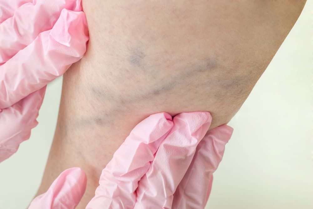 Examination of varicose veins on a womans legs